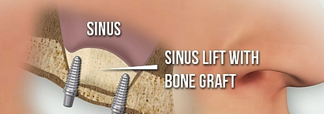 Sinus Lift Surgery in Canada