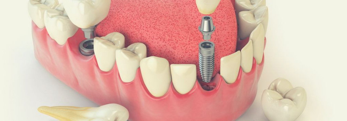 permanent teeth implants in UK