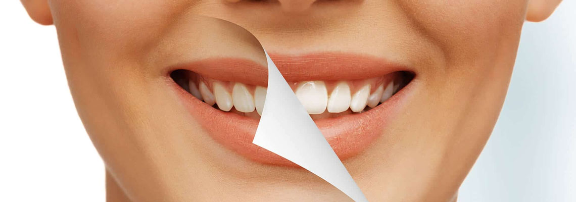 full mouth restoration in Australia