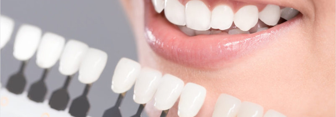 dental veneers cost in India